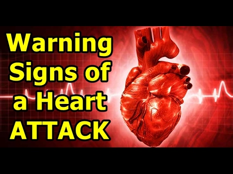 heart attack sign